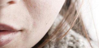 Afecta clima frío la piel de las personas